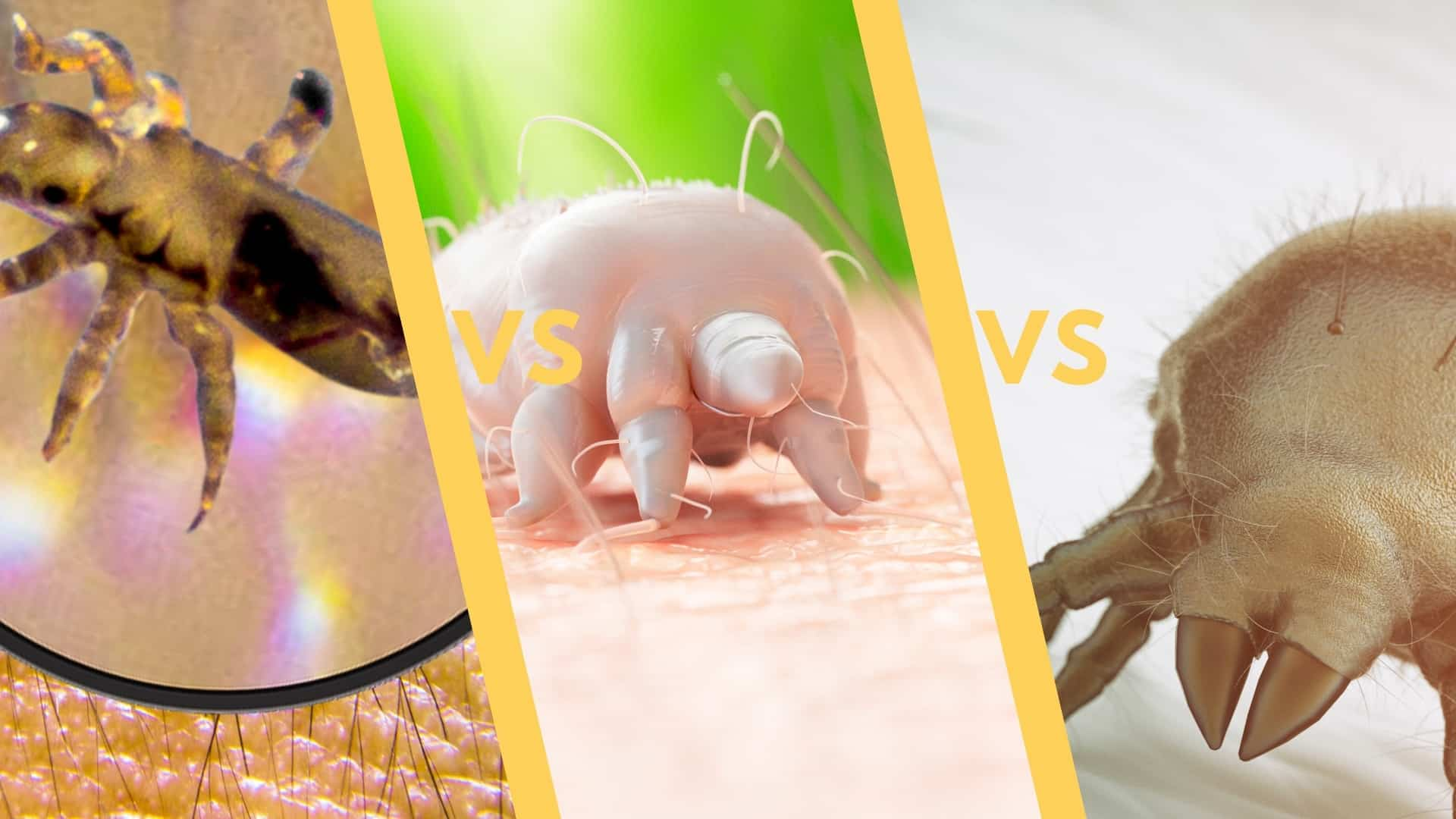 Dust mites vs lice vs scabies vs bed bugs [Complete Guide]